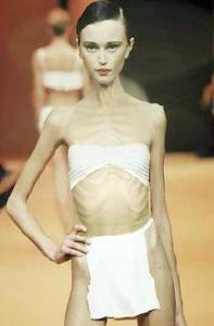 skinny-model1.jpg