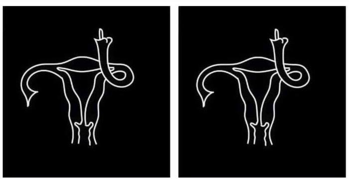 Mistä puhumme kun puhumme abortista?