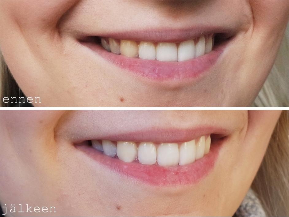 hampaiden valkaisu blogi