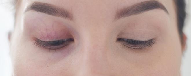 peiteaine tummat silmänaluset 2