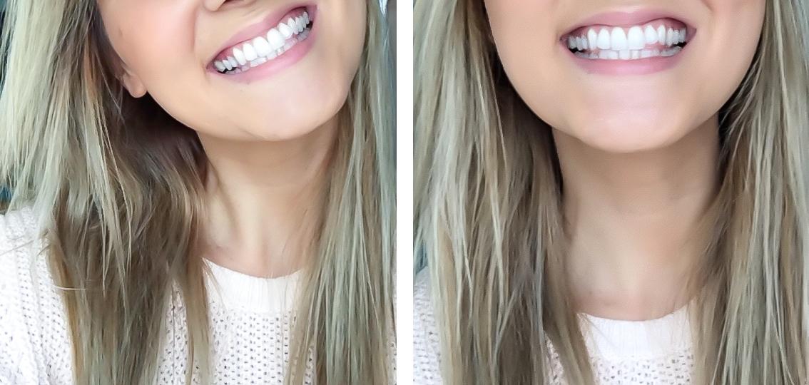 Kuka pelkää hammaslääkäriä?