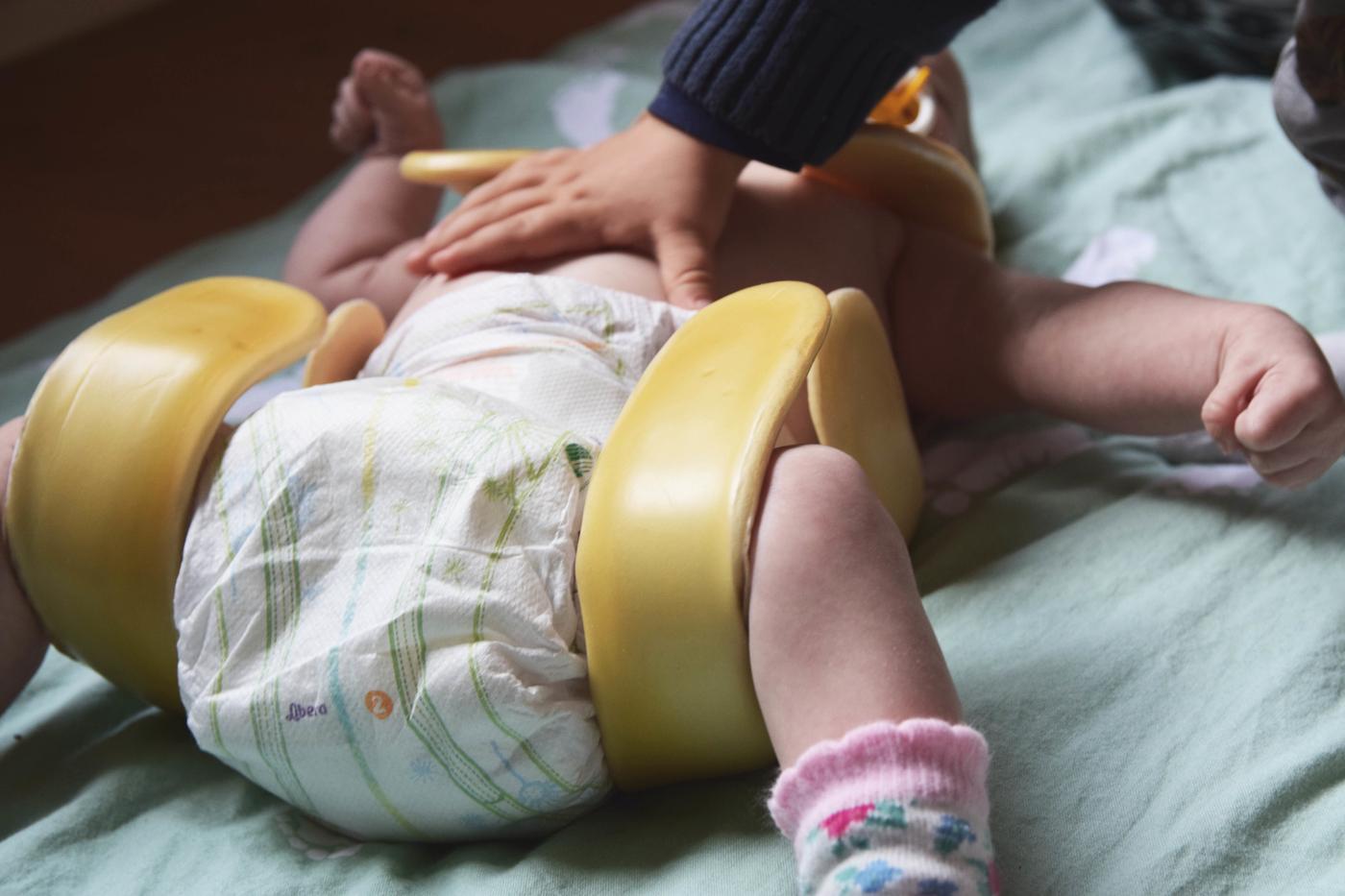 lonkkalasta vauvalla4.jpg