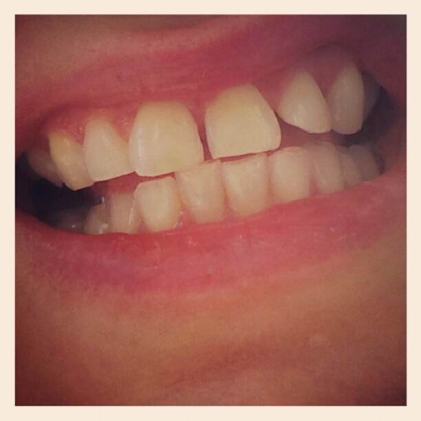 hampaat ennen.jpg