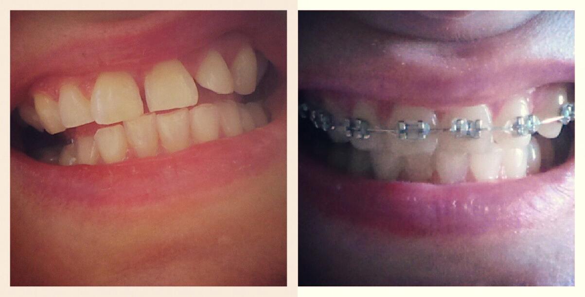 hampaat ennen ja jälkeen.jpg