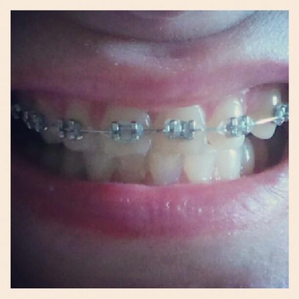 hampaat nyt.jpg
