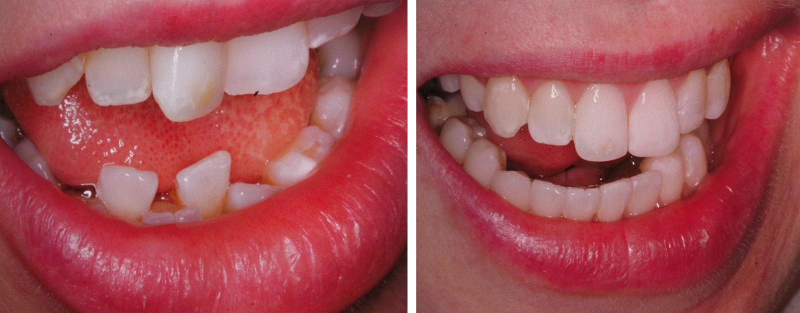 hampaat_ennen_jälkeen.jpg