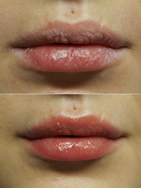 huulet.jpg