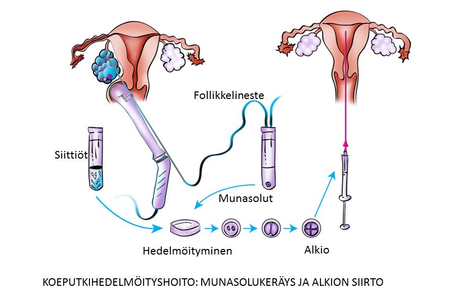 IVF kulku
